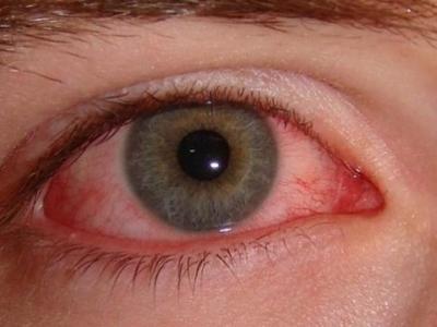 Ποια αυτοάνοσα νοσήματα φαίνονται στα μάτια;