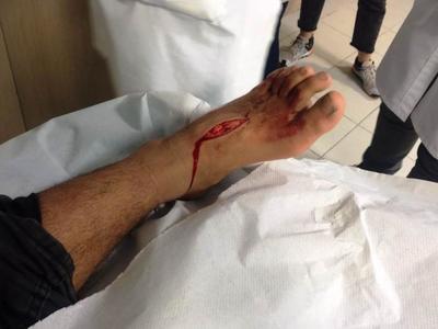 Πάτρα: «Λιμενικός μαχαίρωσε στο πόδι το 14χρονο προσφυγόπουλο»- Προσφεύγουν στη Δικαιοσύνη οι αλληλέγγυοι –ΦΩΤΟ