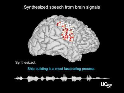 Πρωτοποριακή συσκευή εμφυτεύεται στον εγκέφαλο ασθενών που χάνουν την ομιλία τους και τους δίνει... φωνή!