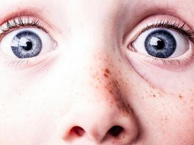 Δακρύρροια στα παιδιά: αιτίες & αντιμετώπιση