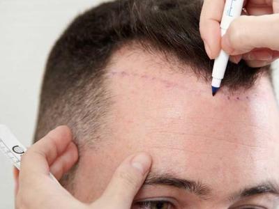 Στην Πάτρα η καλύτερη κλινική μεταμόσχευσης μαλλιών στον κόσμο